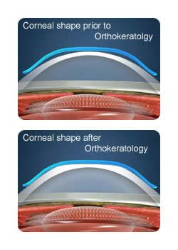corneal_shaping